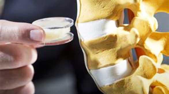 颠覆式创新?荷兰医疗开发3D打印植入物,让少年可以再次行走